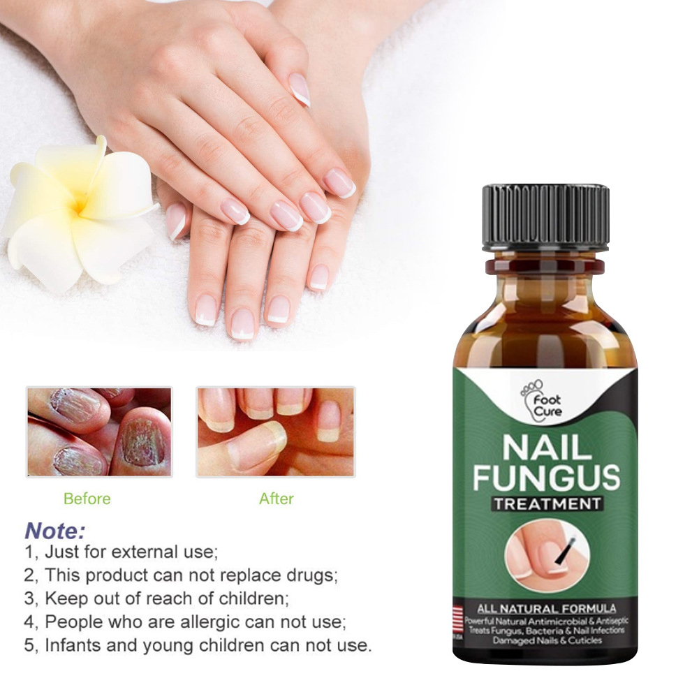 Nail Repair Liquid Hand Foot  leuconychia Care Repair Liquid Antibacterial And Thickening Soft Nail 30ml