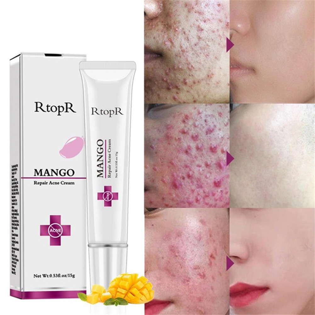 Mango Repair Acne Cream Anti Spots Acne Treatment Scar Blackhead Cream Shrink Pores Whitening Moisturizing Face Skin Care 15g