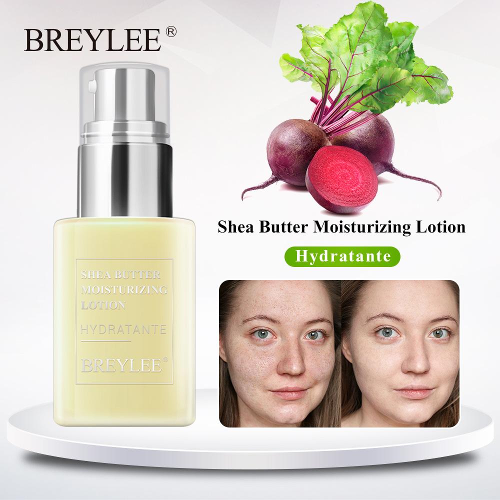 Shea Butter Moisturizing Lotion Skin Care Anti Acne Treatment Day Night Cream