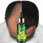 30ML Effective Ginger Hair Growth Treatment Hair Growth Essence Oil Hair Loss Products 30ML