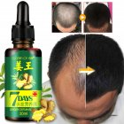30ml Women Men Hair Care Growth Essence Liquid Fast Restoration Hair Hair Loss Nutrition Tool