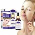 Shrink Pores Serum Pore Tightens Refining Moisturizing Essence Facial Essence Skin Care 30ml